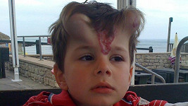 George se díky implantátům na čele po pár měsících zbavil mateřského znaménka.