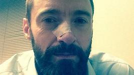 Hugh Jackman po odejmutí nádoru z nosu.