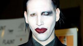 Marilyn Manson si naštěstí potrpí na silný make-up, takže poškození jeho obličeje nebude vidět.