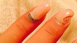 Zpěvaččiny prsty začínají nebezpečně modrat...