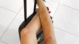 Nohy Moniky Koblížkové jsou plné pohmožděnin.