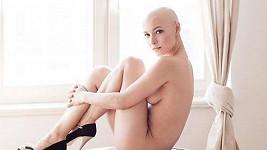 Karolína fotila akty, když měla jí po léčení vypadaly vlasy.