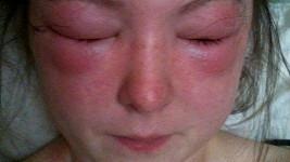 Šestnáctiletá Bethany nemohla ani otevřít oči.