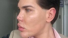 Muži po únorové operaci začala odumírat tkáň v oblasti nosu.