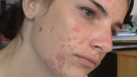 Statečná Katka nám poslala fotografii, jak vypadala v nejhorší fázi nemoci. Zpěvačka si dělala legraci, že tuto fotku používá do seznamky.
