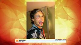 Tvář a zuby Stevena Tylera po pádu ve sprše.