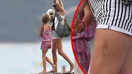 Kate Moss a její nohy plné modřin.