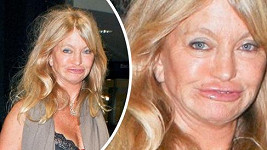Goldie Hawn si s plastikami nedá pokoj.