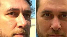 Domenico před a po zákroku.