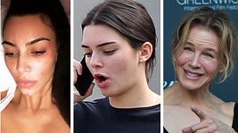 Tyto slavné dámy mají se svou kůží jenom trápení.