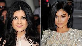 Kylie Jenner tvrdí, že žádné plastiky nepodstoupila.