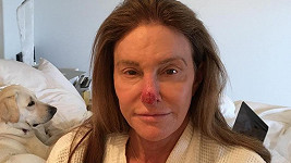 Caitlyn ukázala zničený nos.