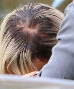 Fotografové zachytili, jak herečce řídnou vlasy.