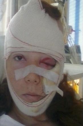 Takto vypadala Nikol Kouklová po nehodě.