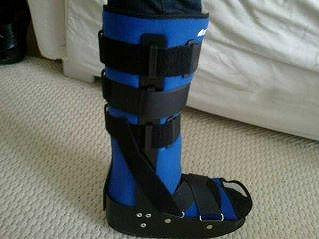 Martina noha v ortéze.