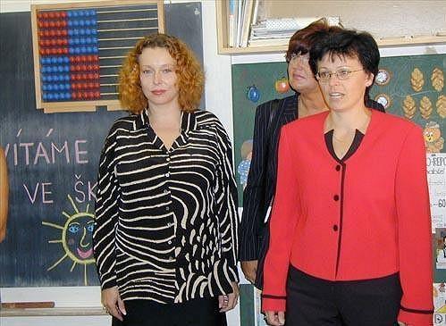 Petra Buzková v roce 2003. Tehdy si nechala zmenšit ňadra.