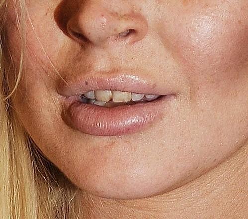 Pohled na chrup Lindsay Lohan není zrovna pěkný.