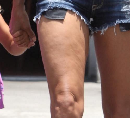 Halle Berry má na stehnech pořádnou celulitidu.