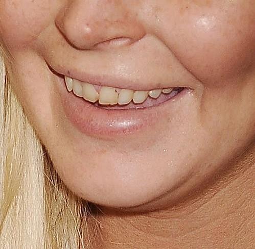 Lindsay Lohan sice na premiéře videohry Saints Row: The Third vypadala skvěle, ale jen do doby, než se usmála.