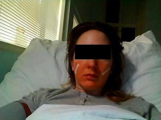 Ektorova údajná oběť Tereza má prý zlomenou čelist.