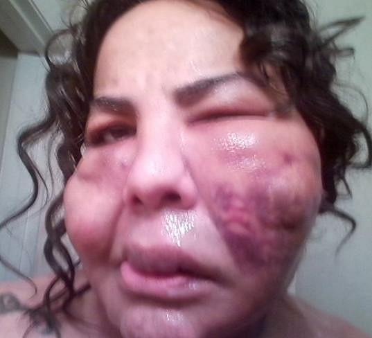 V nejhorší fázi po zásahu falešnou lékařkou byla takto znetvořená.