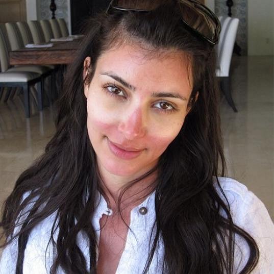 Nevydařené opálení Kim Kardashian.