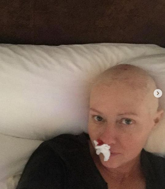 Fotkami z průběhu léčby chce herečka šířit povědomí o nemoci.