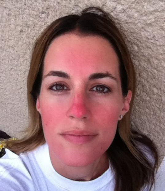 S takto červeným obličejem trávila Lucie sedm dní. Nikdo netušil, že se jedná pouze o make-up.