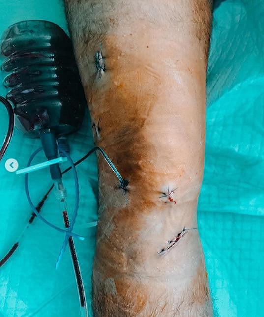 Herec a moderátor podstoupil operaci kolene.