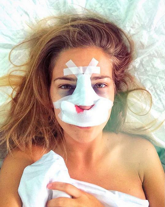 Andrea po operaci zůstane přes noc na klinice. Čeká ji odstranění tamponády z nosu a po dvou týdnech pak sejmutí sádrové dlahy.
