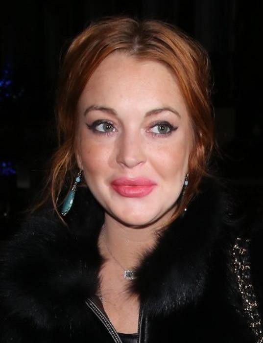 Lindsay a její opuchlá ústa.