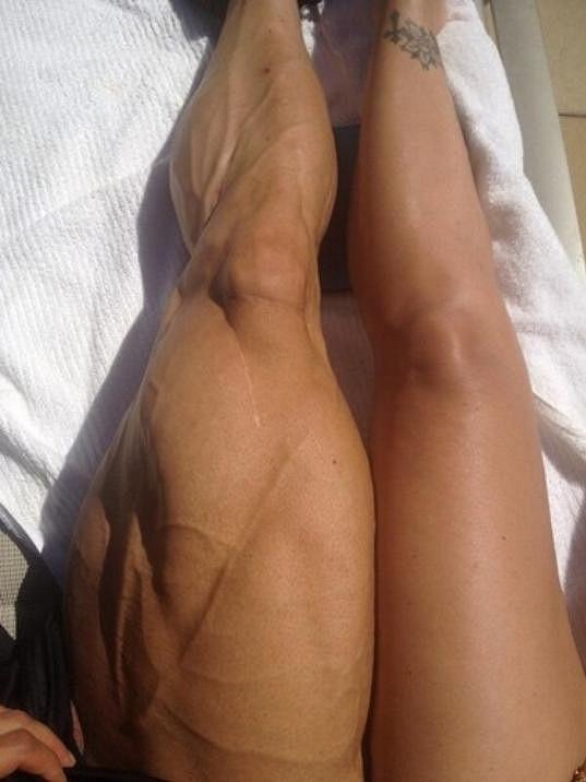 Milenci si poměřují stehna.