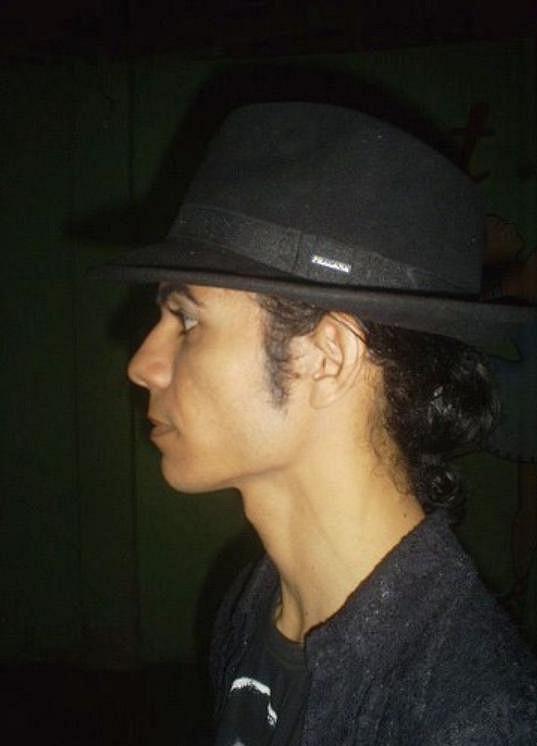 Antonio Gleidson Rodrigues se nespokojil se svou vizáží. Chtěl vypadat přesně jako Michael Jackson.