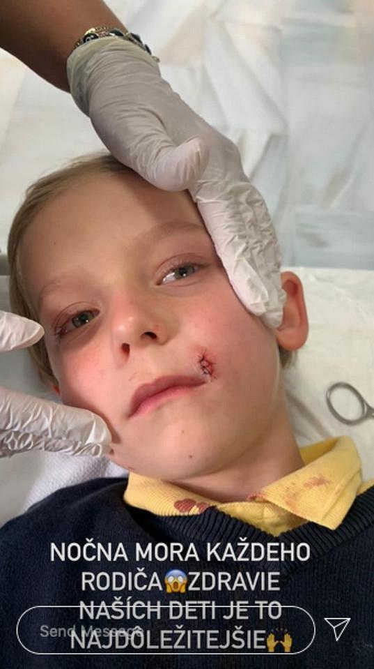 Nevio měl ve školce nehodu, rozrazil si tvář.