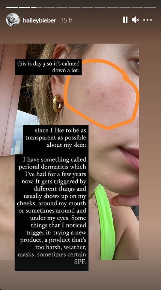 Hailey Bieber se rozepsala o kožní nemoci a ukázala pupínky.