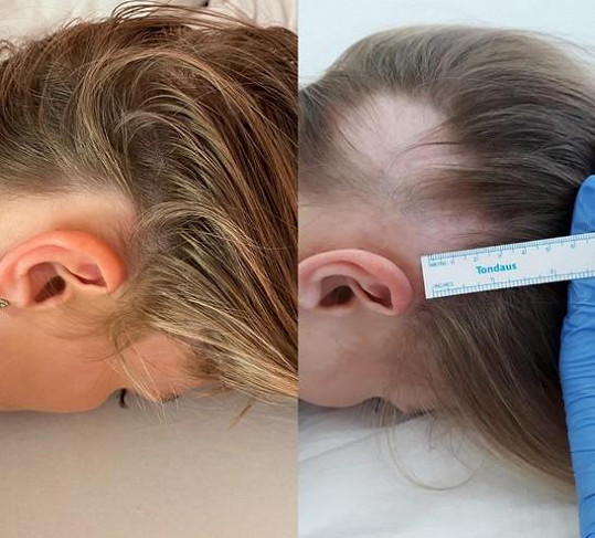 Loni v zimě onemocněla alopecií.