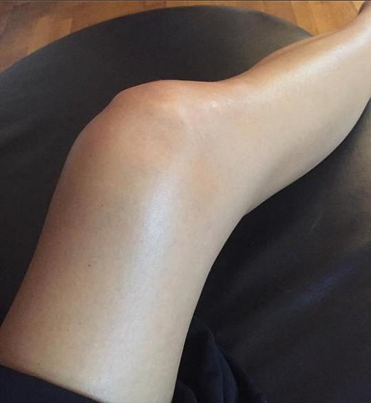 Ivino pokroucené a oteklé koleno po zranění
