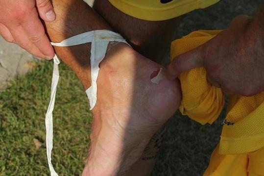 Marka Víta z hřiště vyhnalo toto zranění.