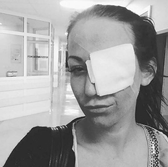 Agáta Prachařová si poranila oko.