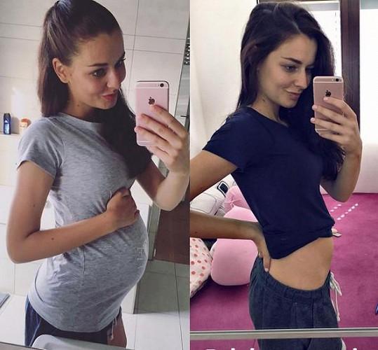 Tereza Chlebovská v devátém měsíci těhotenství (vlevo) a pět dní po porodu (vpravo)