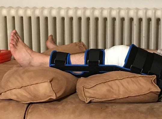 Manžel Marty Jandové si také zlomil nohu.