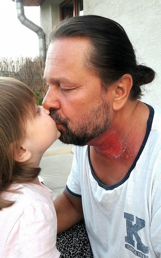Jiří Pomeje s dcerou Aničkou. Herec má za sebou 35 ozařování.