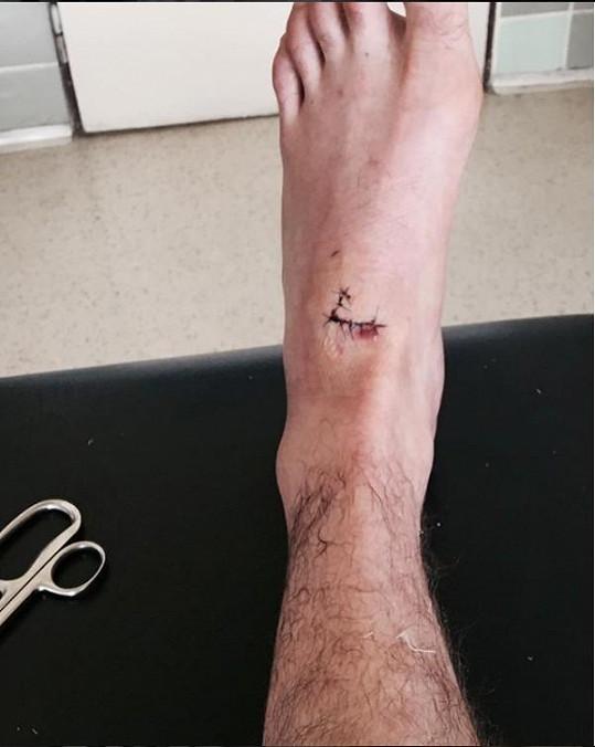 Herec se pochlubil svou nohou po vytažení části stehů.