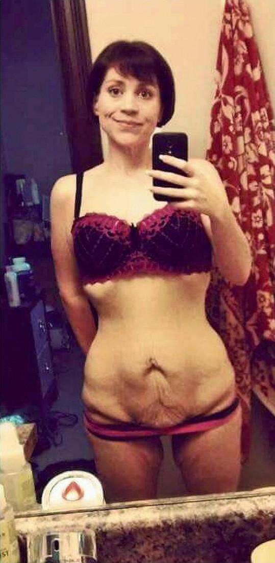Po redukci váhy ji trápila povislá kůže.