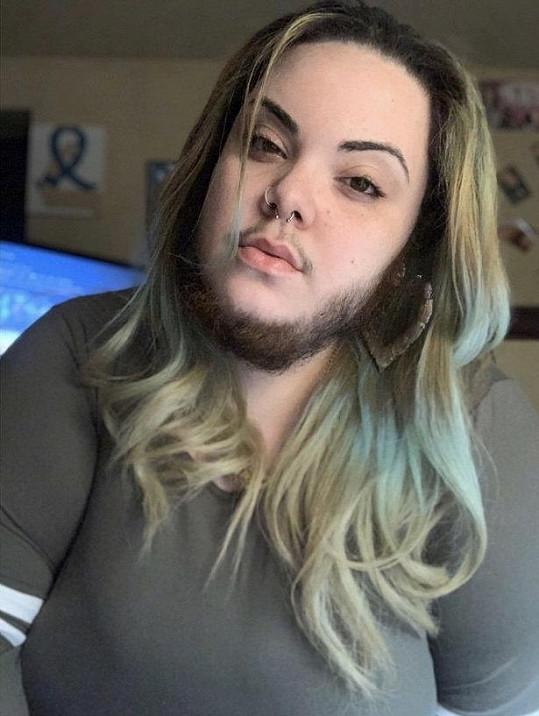 Roky se holila, pak se naučila svůj vzhled akceptovat.