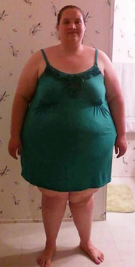 Celia Shroder v době, kdy vážila 175 kilogramů.