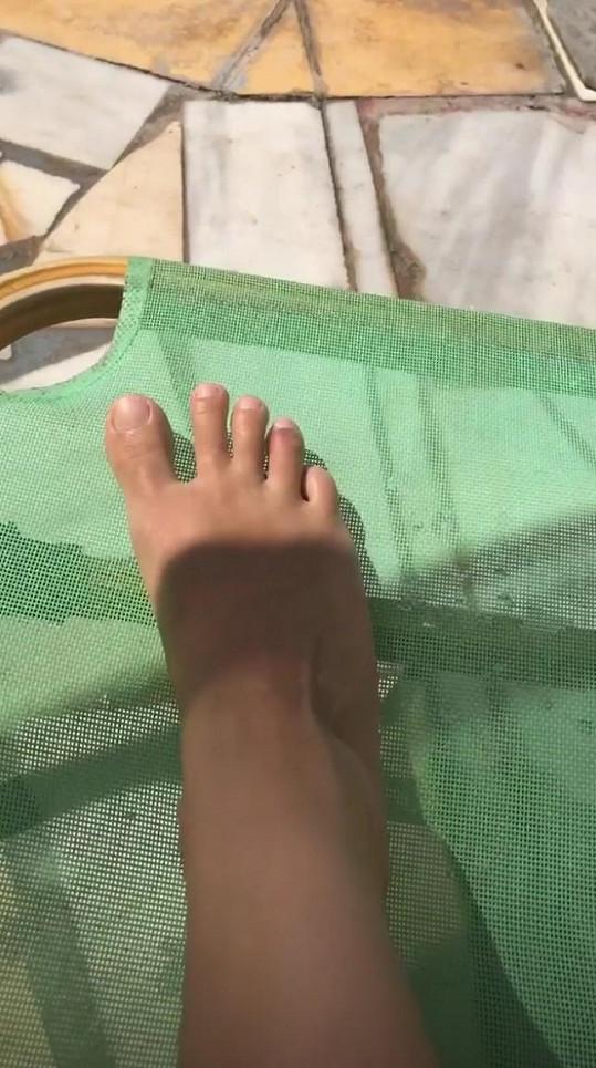 Moderátorka si nešikovně poranila prst na noze.