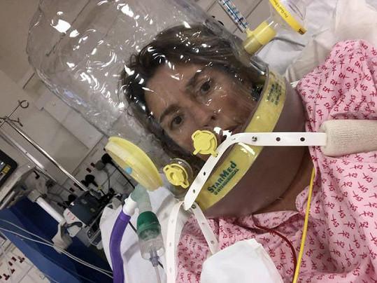 S tímto přístrojem dýchala Anabel čtyři týdny.