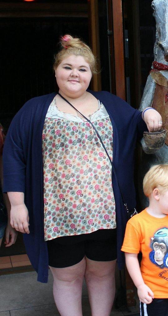 Svou obezitu Nicole sice přiživila nezdravou životosprávou, konzumovala 4000 kcal denně, ale měla k ní i sklony. Oba její rodiče podstoupili bypassy žaludku a i další členové rodiny trpí obezitou.