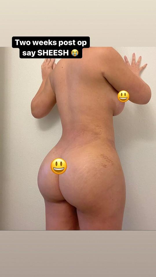 Po zvětšení prsou, liposukcích a liftingu zadku